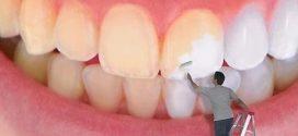 تخلصى من اصفرار الأسنان باستخدام الليمون والبيكنج بودر