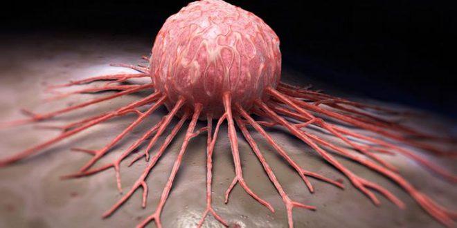 طبيب نفسي مصري يعالج السرطان بدون أدوية كيماوية وقريبًا سوف يعلن عن مفاجأة علمية كبيرة