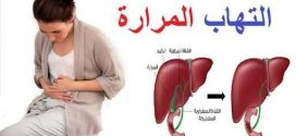 د.عادل الركيب يكتب كيف نتعامل مع التهاب المرارة
